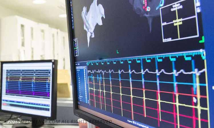 راهنمای خرید مانیتورینگ الكتروفيزيولوژي قلبی