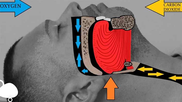 دستگاه درمان آپنه خواب