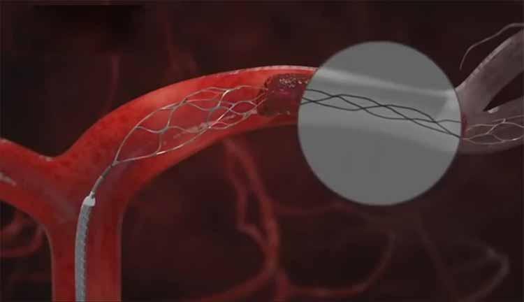 روش های بازکردن انسداد رگ های خونی