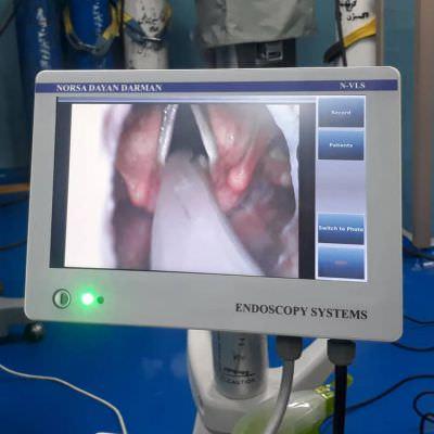 ویدیو لارنگوسکوپ مدل N-VLS شرکت نورسا دایان درمان